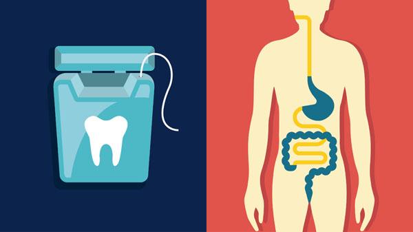 Καρκίνος του εντέρου και στοματική υγεία