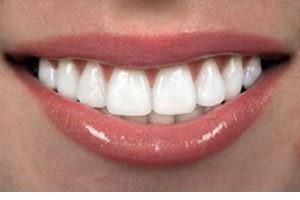 Λεύκανση Δοντιών12