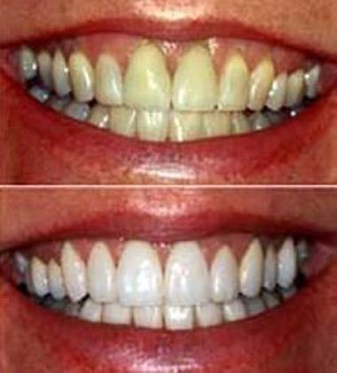 Λεύκανση Δοντιών14