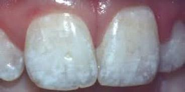 Λεύκανση Δοντιών18