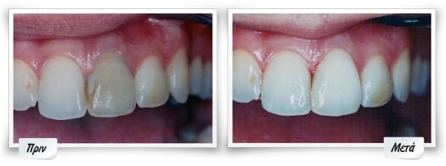 Λεύκανση Δοντιών2