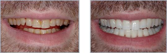 Λεύκανση Δοντιών3
