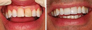 Λεύκανση Δοντιών7