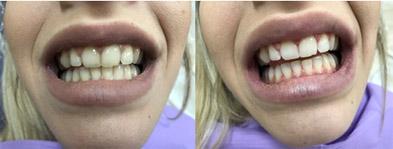 Λεύκανση Δοντιών8
