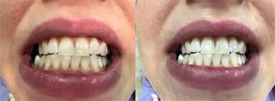 Λεύκανση Δοντιών9