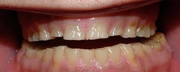 Βρουξισμός Δοντιών